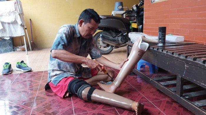 Kisah Anas Kehilangan Kaki karena Kecelakaan, Kini Sukses Jadi Pembuat Kaki Palsu di Tegal