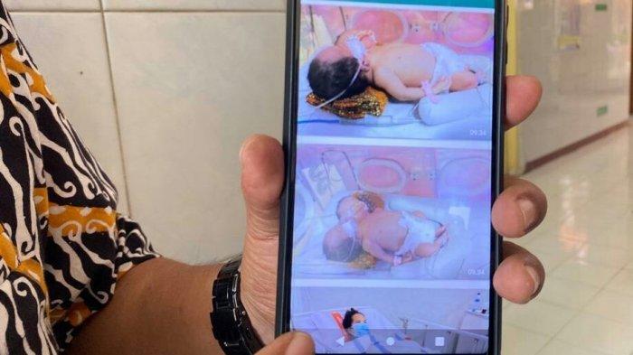 Bayi Kembar Siam 2 Kepala 1 Tubuh Lahir di Slawi, Ibu Tahu Sejak Hamil 4 Bulan, Begini Kondisinya