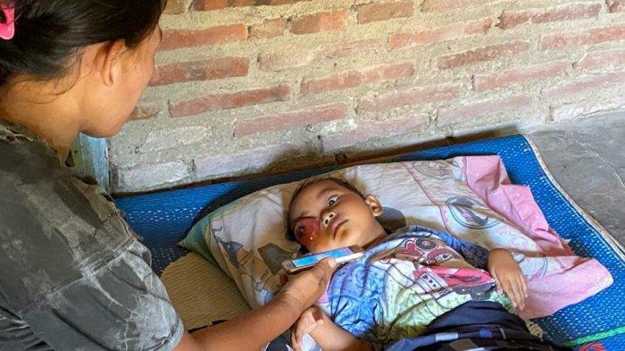 Balita di Kabupaten Tegal Derita Tumor Mata, Butuh Bantuan untuk Kehidupan Sehari-hari