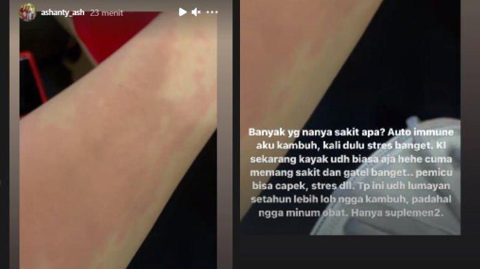 Tangkapan layar Instastory Ashanty unggah video tangannya yang ruam disertai tulisan yang menjelaskan keadaannya.