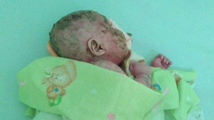 5 Fakta Bayi Mizyan Berkulit Mirip Plastik, Berdarah saat Digaruk hingga Tunggu Diagnosis Dokter