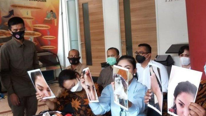 Penyanyi Nindy Ayunda menunjukkan foto-foto lebam pada wajahnya akibat kekerasan dari suaminya, Askara Parasady, di kantor Komnas Perempuan, Jakarta, Selasa (16/2/2021).