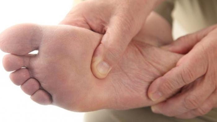 Deretan Obat Asam Urat, Kenali Juga Efek Samping Yang Ditimbulkan