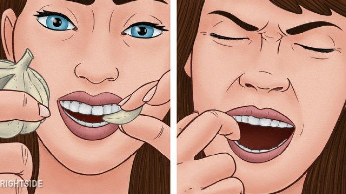 Apa Obat Sakit Gigi? Ini Cara Mengobati Sakit Gigi Pakai Bahan Alami Ini, Tak Perlu ke Dokter