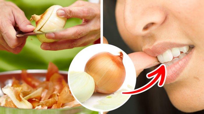 Mudah, Begini Cara Menghilangkan Sakit Gigi Menggunakan Bahan Alami