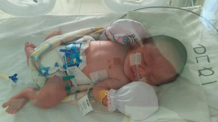 Gawat, di Painan Sumbar Ibu yang Habis Melahirkan Positif Covid-19 Meningkat, Bayi Harus Diisolasi