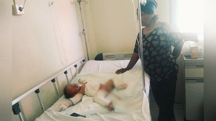 Bayi Korban Kebakaran Pondok di Keritang Inhil Sudah Dioperasi, Terungkap Sumber Api