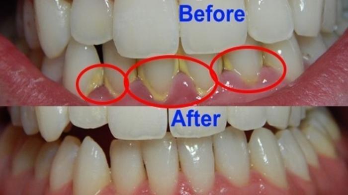 Bersihkan Sendiri Pun Bisa, Cara Menghilangkan Karang Gigi Dilakukan dengan Mudah di Rumah