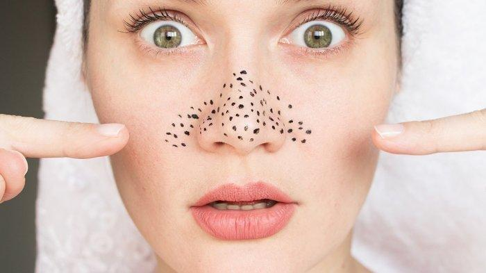 Cara Menghilangkan Komedo di Hidung dengan Cepat Pakai Bahan Alami, Ternyata Tidak Rumit