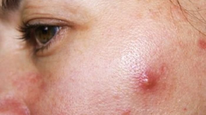 Pencet Jerawat di Hidung, Remaja Alami Infeksi Otak & Mengancam Nyawa: INI Bahaya Pencet Jerawat