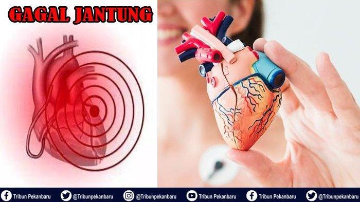 GAGAL Jantung Akut, Ini Penjelasan dr Patricia Feliana Sitohang dari RS Awal Bros Panam Riau
