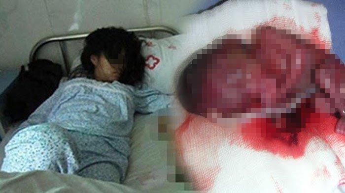 Ribuan Janin Tak Berdosa Dimusnahkan di Klinik di Jakarta Ini, Biaya Aborsi Mulai Rp 1,5 Juta