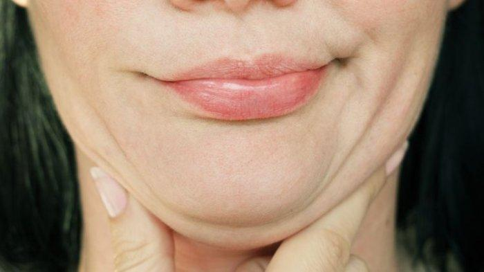 Apa Itu Double Chin? Ini Arti Double Chin, Kenali Penyebab Badan Kurus Tapi Double Chin