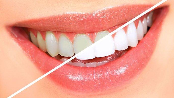 5 Cara Memutihkan Gigi Secara Alami, Tak Perlu Takut Berbahaya