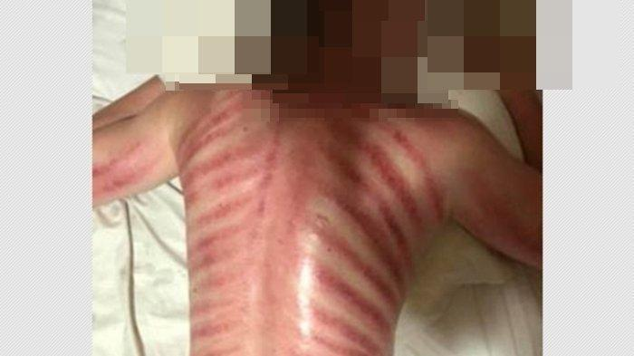 Kerokan Maut Bikin Nyawa Pria Ini Melayang, Giginya Gemertak dan Meninggal Dalam Kesendirian