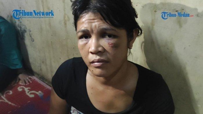 Update Kasus Janda 2 Anak Diperlakukan Seperti Anjing, Dirantai dan Disiksa, Kini Alami Trauma