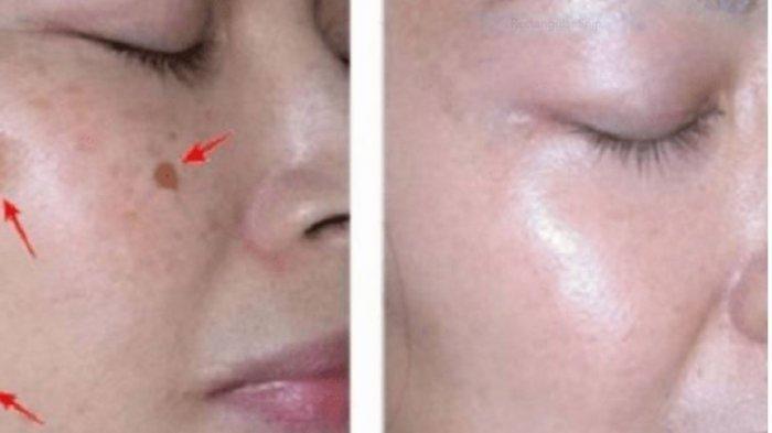 Cara Ampuh Menghilangkan Flek Hitam di Wajah, SIlahkan Pakai Ini Untuk Bersihkan Bercak Hitam