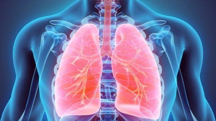 MENGERIKAN, Begini Kondisi Paru-Paru Saat Terinfeksi Corona, Tak Sama dengan Pneumonia Biasa