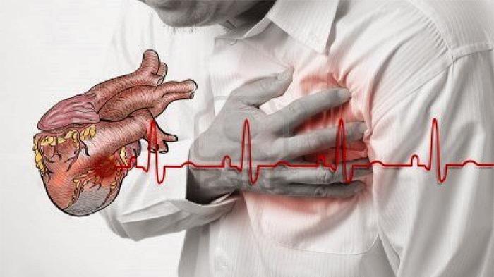 Orang Bertubuh Kurus Tak Bertahan Lama Jika Serangan Jantung