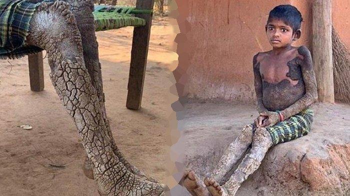 Kisah Menyedihkan, Berkulit Batu, Penyakit Langka Dua Bocah Tak Bisa Disembuhkan, Dikucilkan Warga