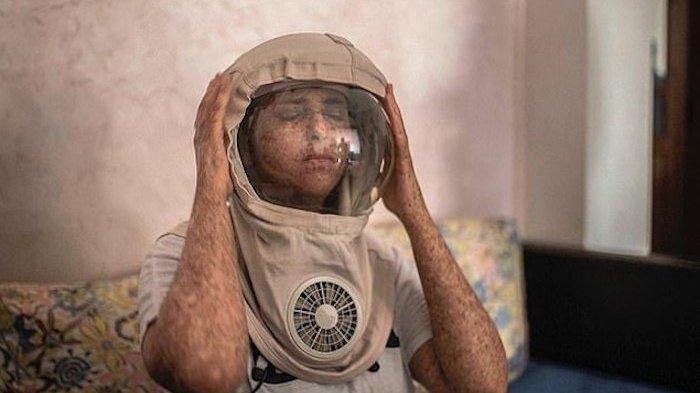 KISAH NYATA Gadis Maroko Pakai Helm Seumur Hidup, Tak Pernah Keluar Rumah Selama 20 Tahun