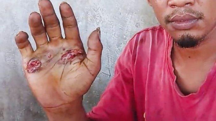 Kronologi Pria di Sikka Dipaksa Pegang Besi Panas, Buktikan Tak Bersetubuh dengan Seorang Perempuan
