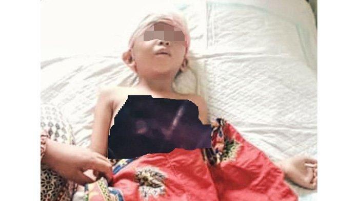 Kecelakaan Tragis Timpa Bocah di Inhil, Kulit Kepala Lepas Tertarik Mesin Pompong, Ini Kisahnya