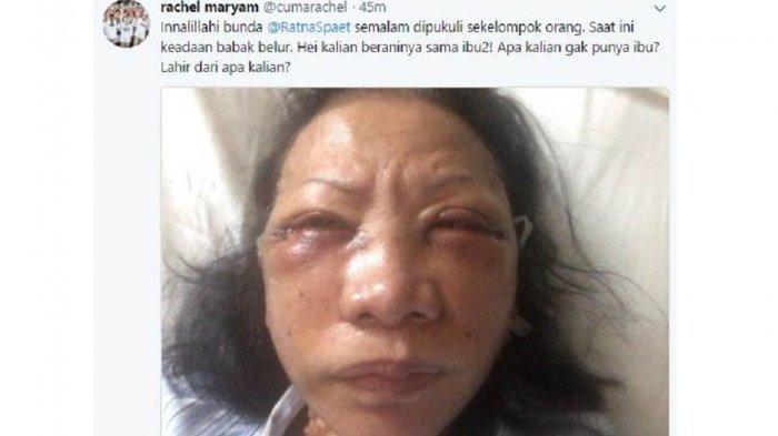 Wajah Babak Belur, Ratna Sarumpaet Ketakutan dan Tak Lapor Polisi Usai Dikeroyok OTK