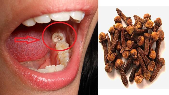 Cara Cepat Mengobati Sakit Gigi, Pakai 9 Cara Ini