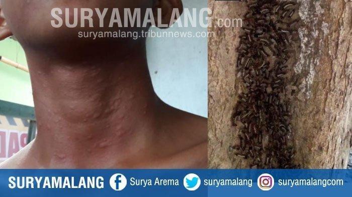 Mengeluh Gatal-gatal,Serangan Ulat Bulu Bikin Resah Warga Tulungagung Sejak 5 Bulan Lalu