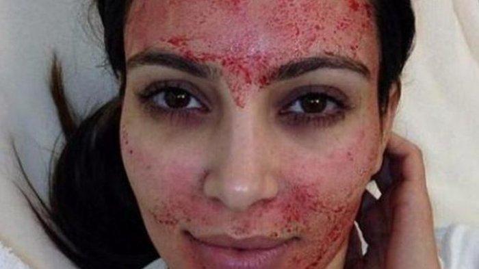 Niat Pengen Cantik Dengan Treatment Vampire Facial, Dua Gadis Muda Ini Malah Tertular HIV