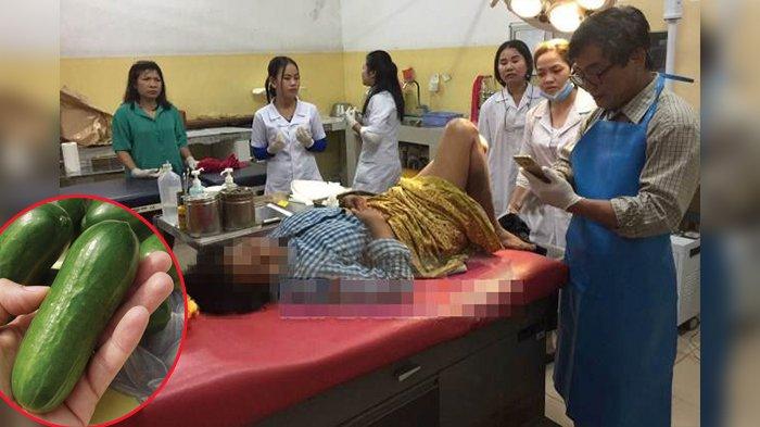 Ngakunya Miss V Sakit karena Jatuh, Dokter Malah Temukan Mentimun di Bagian Pribadi Wanita Ini