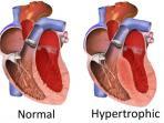 kardiomiopati-hipertrofik-dengan-jantung-normal_20160317_194520.jpg