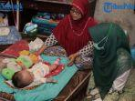 kisah-pilu-bayi-penderita-hidrosefalus-bernama-khanza-anak-buruh-kayu-3-bulan-tanpa-pengobatan.jpg