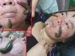 terapi-lintah-jerawat-kulit-wajah_20171026_135651.jpg