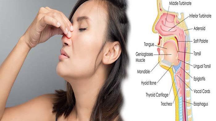 Apa Itu KANKER Sinonasal ? Kenali Gejala Tumor Hidung Ganas di Sekitar Hidung