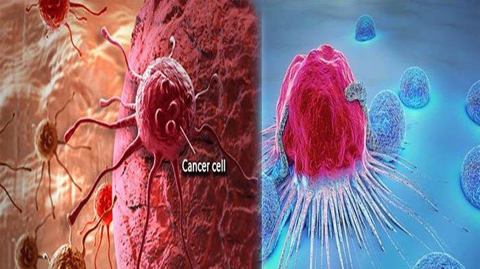 APAKAH Kanker Bisa Sembuh? Ini Beda Tumor dan Kanker