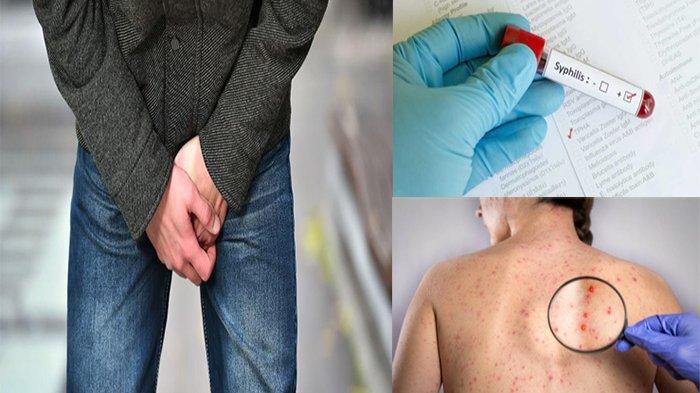 Bakteri Penyebab Penyakit Sifilis, Penyakit Menular Seksual dengan Gejala Seperti Ini !