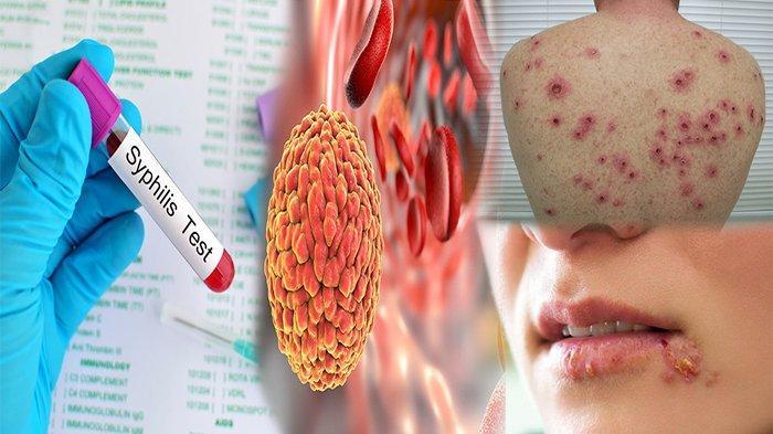 BAKTERI yang Menyebabkan Penyakit Sifilis Adalah ? Tak Diobati Bisa Sebabkan Kerusakan Otak