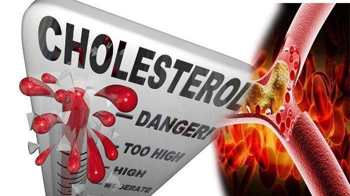 KACANG - KACANGAN Dapat Menurunkan Kadar Kolesterol Karena Memiliki Kandungan?