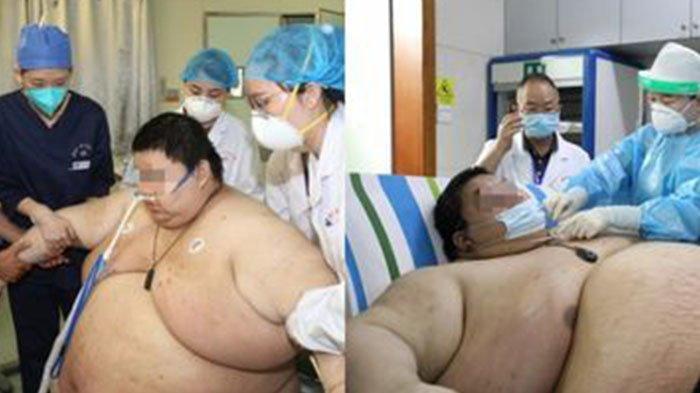 Pria di China Alami Lonjakan Berat Badan saat Jalani Lockdown Selama 5 Bulan, Bobotnya Capai 280 Kg