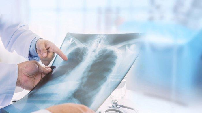 Apa Saja Gejala Pneumonia, Kenali Gejalanya Sedini Mungkin Pada Bayi