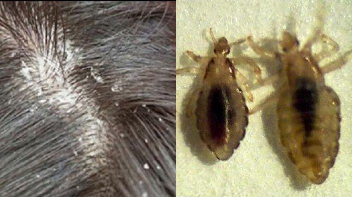 Cara Mudah Membasmi Kutu Rambut dan Telurnya Hanya dengan Bahan Alami, Dijamin Kepala Bebas Gatal