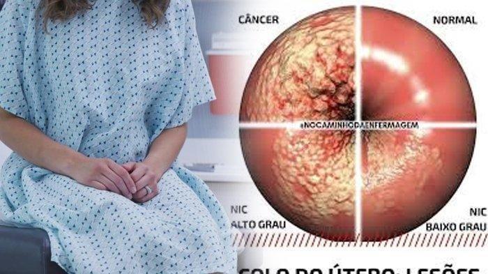 CIRI - ciri Kanker Rahim, Kenali Gejala Awal Terkena Kanker Rahim