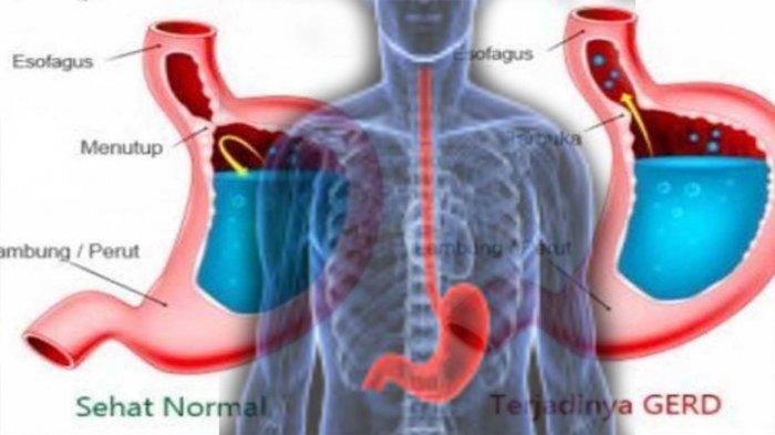 KERUSAKAN Organ Tubuh Akibat Asam Lambung Naik ke Kerongkongan atau GERD , Cara Menangani?