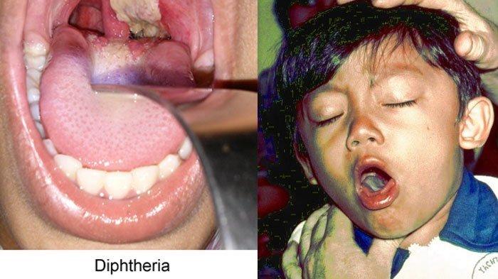 Wabah Difteri dan Imunisasi