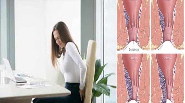 Pantangan Penyakit Ambeien atau Wasir dan Cara Mengatasi Sakit Pada Gejala Wasir