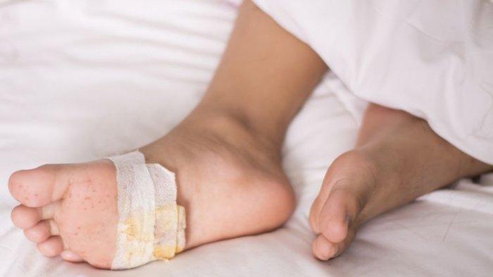 Perawatan Luka Diabetes agar Cepat Kering ! Penyebab Luka Diabetes di Kaki & Ciri-ciri Luka Diabetes