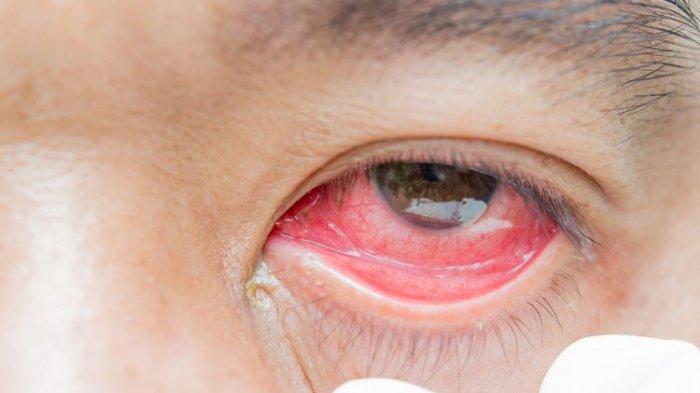 Peneliti China & Profesor Amerika Serikat Ungkap Mata Merah Muda Jadi Gejala Virus Corona Covid-19