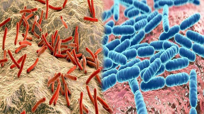 INILAH PENYAKIT yang Disebabkan Bakteri, Waspadai Bakteri yang Sebabkan Penyakit Menular Berbahaya
